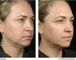 Looking for Thermage for Face Treatment in Dubai?