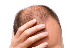 Hair Transplant Cost In Abu Dhabi