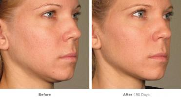 Looking For Ultherapy Treatment in Dubai?