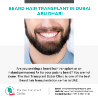 Beard Hair Transplant in Dubai, Abu Dhabi